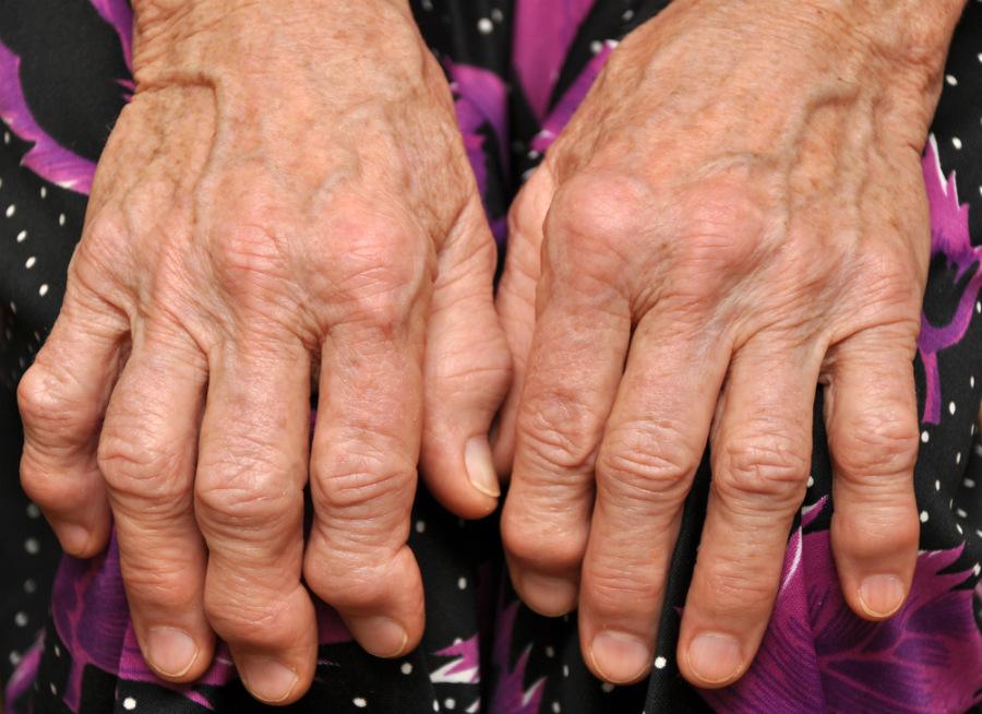 Народные средства при лечении артрита пальцев фото